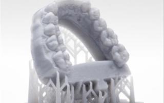 print 3d proteza dentara SLA